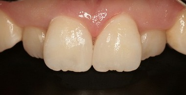 EEdental mi (1).jpg