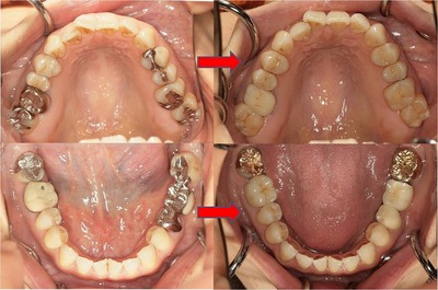 EEdental mo (2).jpg