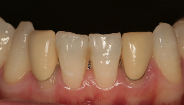 EEdental na2 (1).jpg