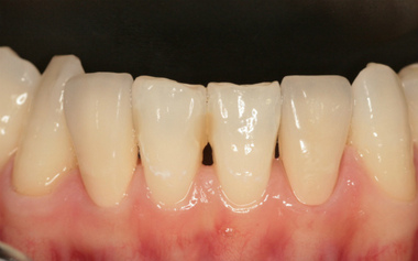 EEdental na2 (2).jpg