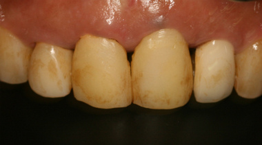 EEdental ta3  (1).jpg