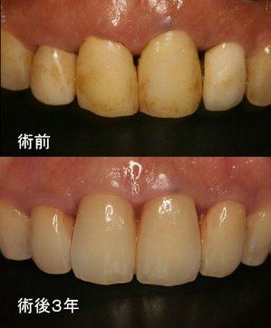 EEdental ta3  (2).jpg