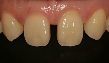 EEdental iha  (1).jpg