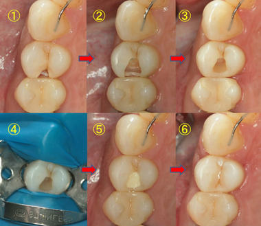 EEdental ta2 (11).jpg