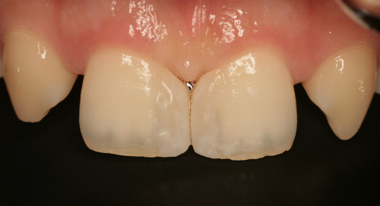 2017 EEdental IAY (3).jpg