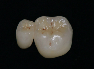 2020 EEdental BT (4).jpg