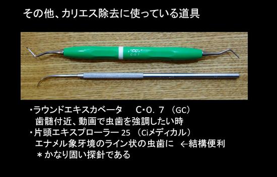 虫歯除去 (2).jpg