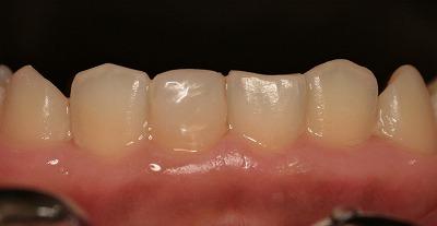 折れた前歯 (1).jpg