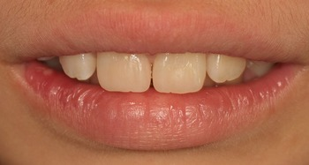 K 1 EEdental (1).jpg