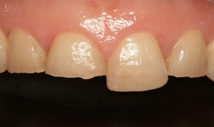 EEdental H (1).jpg